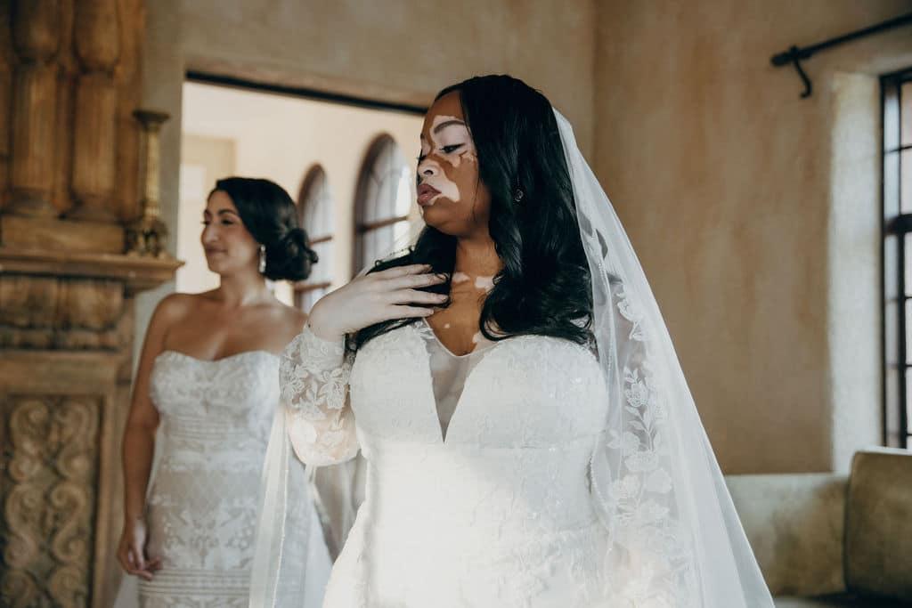 bride with vitiligo in wedding dress at diversity photoshoot